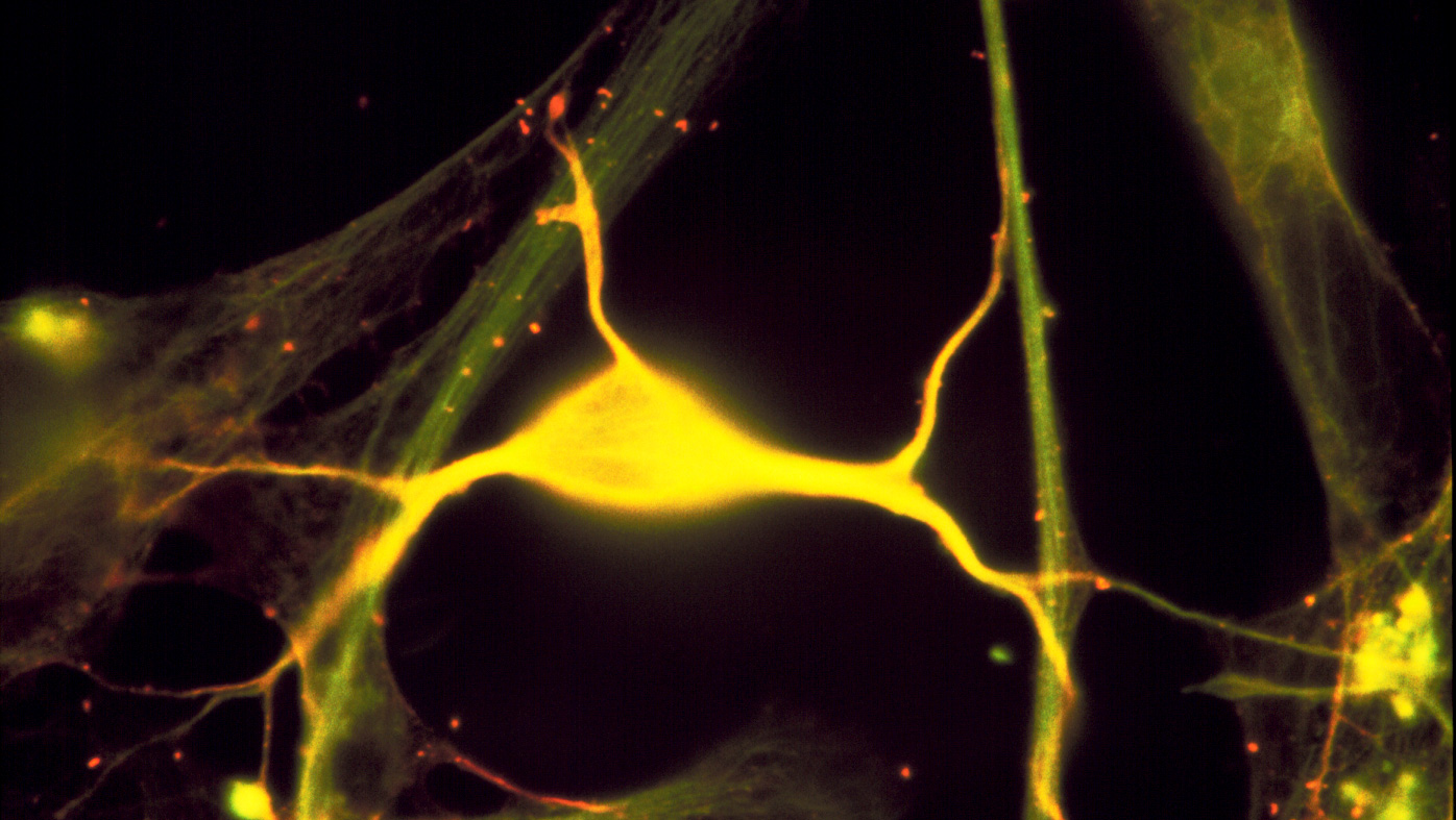 Image 16 neuron tubulin green spectrin red