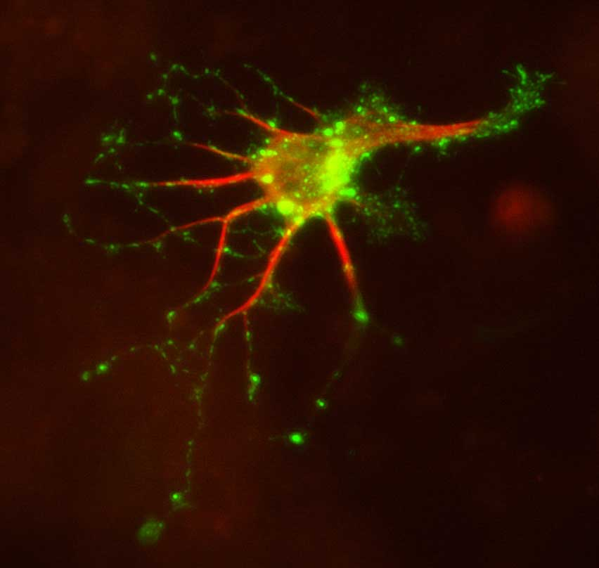Image 18 Neuron transfected with doublecortin (DCX) DsRed and mannose phosphate receptor (MPR) GFP