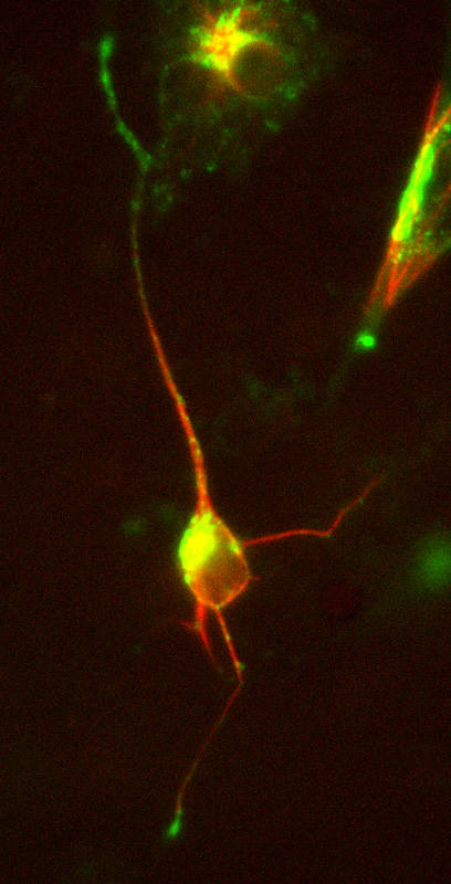 Image 19 Neuron transfected with doublecortin (DCX) DsRed and mannose phosphate receptor (MPR) GFP.