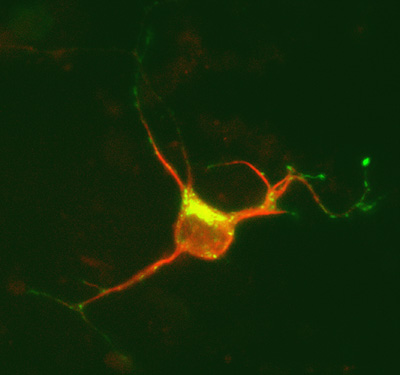 Image 17 neuron dcx dsred mpr gfp