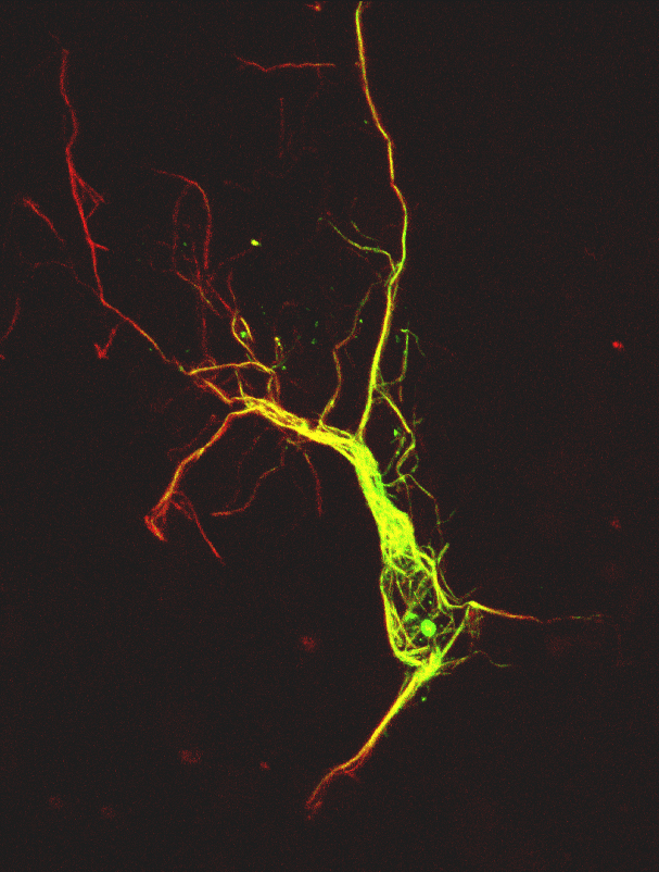 Image 23 confocal neuron