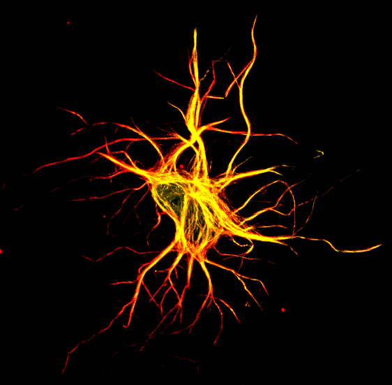 Image 21 neurons confocal dcx mu1a